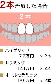 歯 値段 セラミック 【実はぼったくり!?】セラミック(陶器)の歯の被せ物の値段