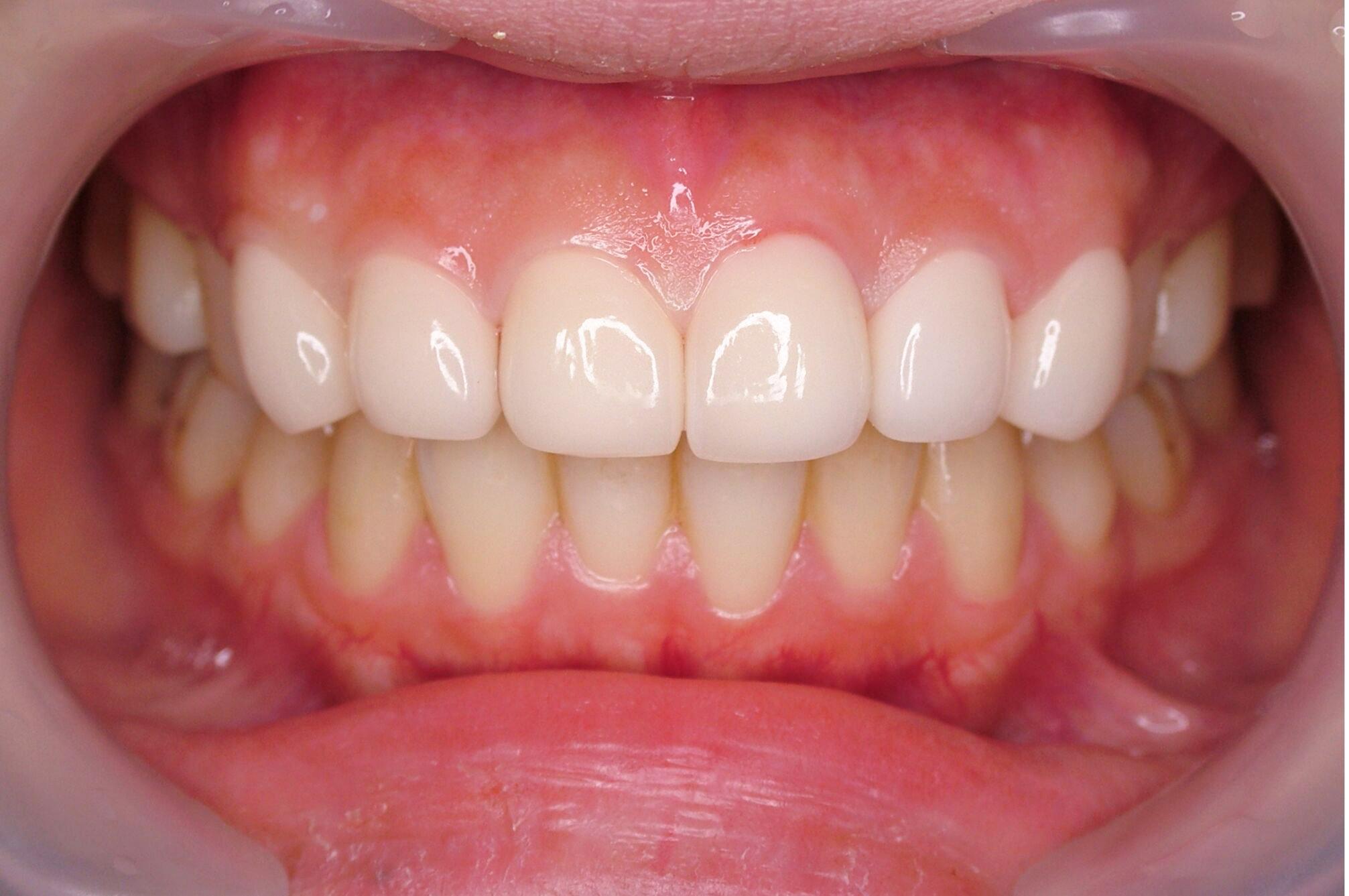 前歯の変色と欠けた歯を治療した症例のサムネール画像