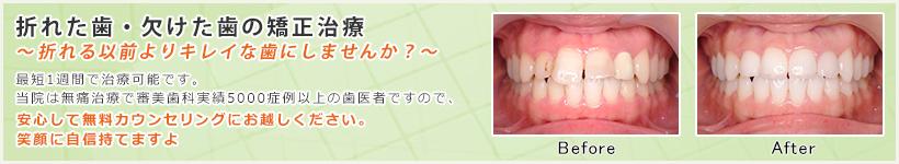 折れた歯・欠けた歯の矯正治療