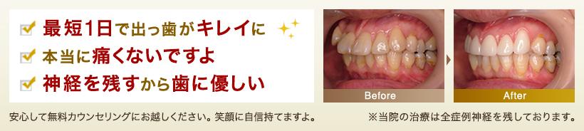 出っ歯(上顎前突)の矯正治療