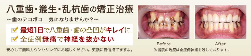 八重歯・叢生(そうせい)・乱杭歯の矯正治療