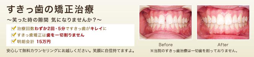 すきっ歯(正中離開・空隙歯列)の矯正治療