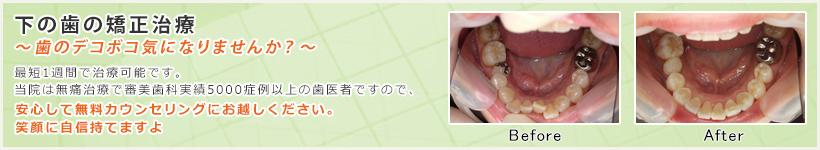 下の歯の矯正治療