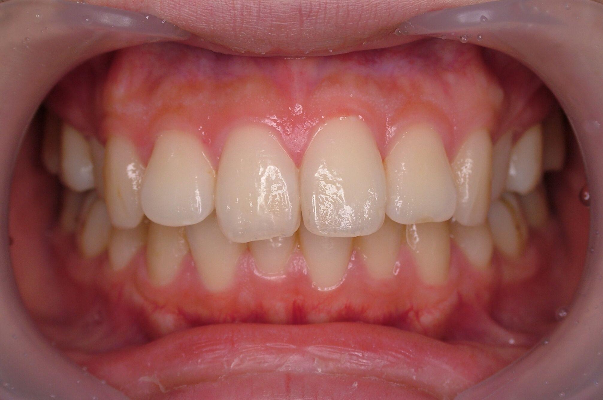 長い 前歯