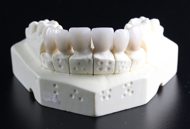 tooth-replacement-759929_640