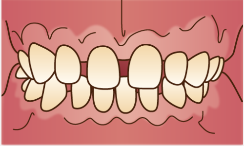 orthodontics034