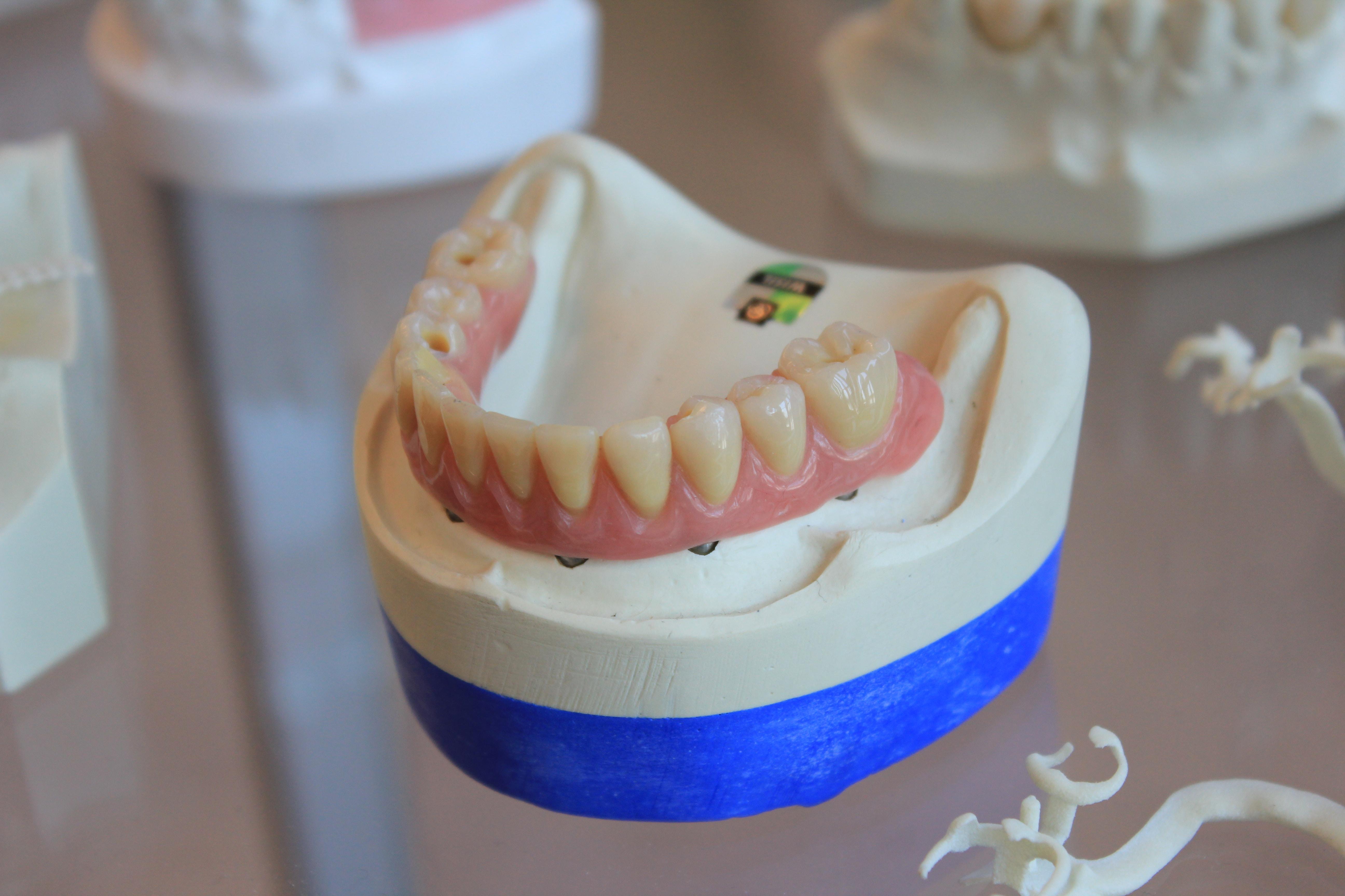 目立たない歯列矯正
