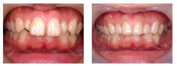 出っ歯症例2
