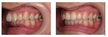 出っ歯症例3